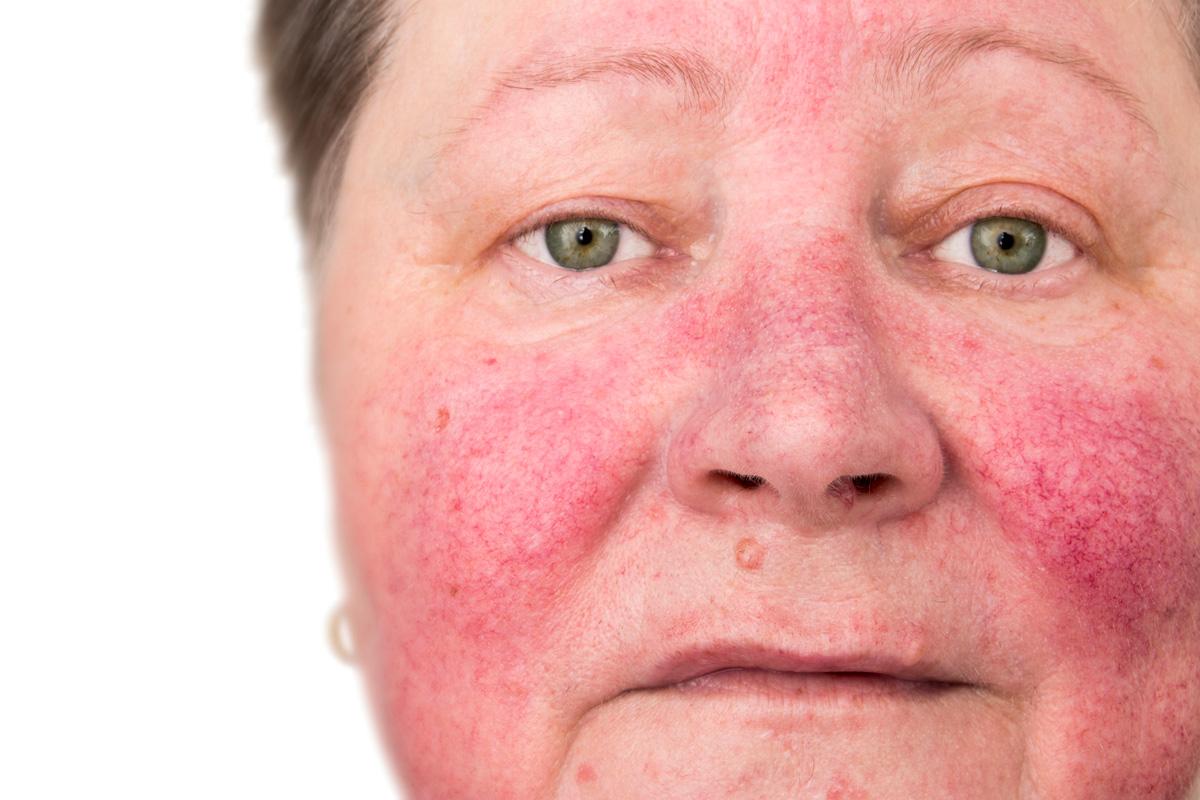 Jak usunąć rumień z twarzy?